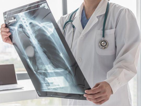shutterstock_lung Pulmonary Fibrosis-1632374828947