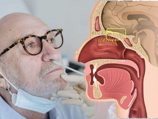 Nasal olfactory